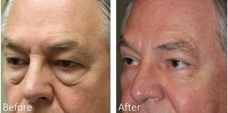 Get rid of eye bags