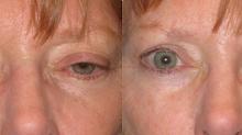 Upper Eyelid Ptosis - Droopy Eyelids