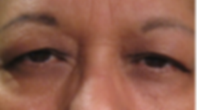 Dallas Oculoplastic Surgeon Blepharoplasty Dr. Vrcek