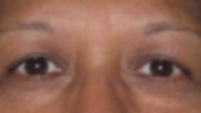 Dallas Oculoplastic Surgeon Dr. Vrcek Blepharoplasty