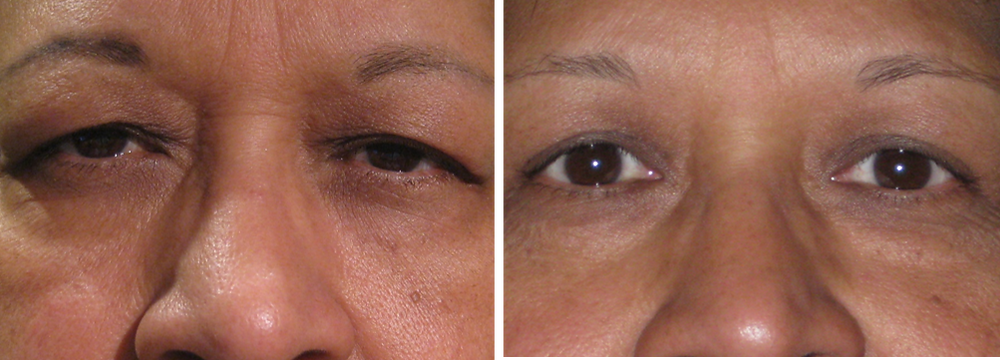 Dallas Eyelid Surgeon