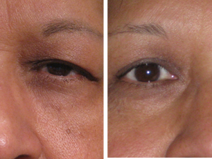 "Minimally Invasive ""Incisionless"" Ptosis Repair"