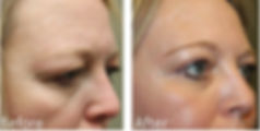 Dallas Brow Lift