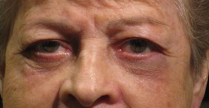 Eyelids Fixed
