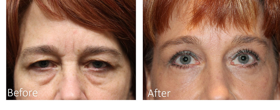 Best Brow Lift Dallas
