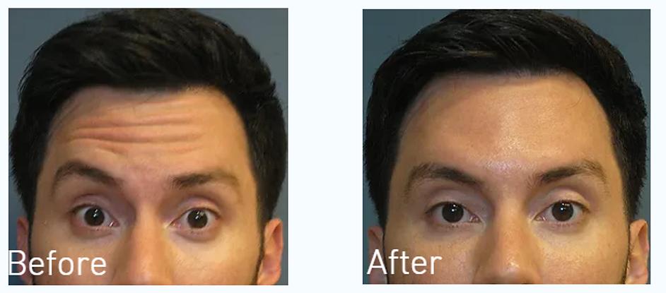 Dallas Botox