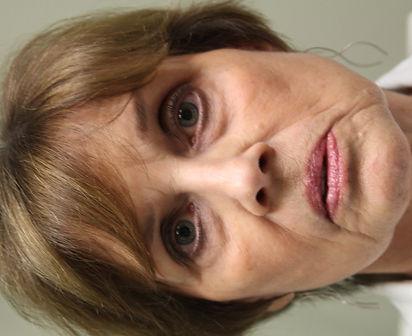 Lower eyelid bags