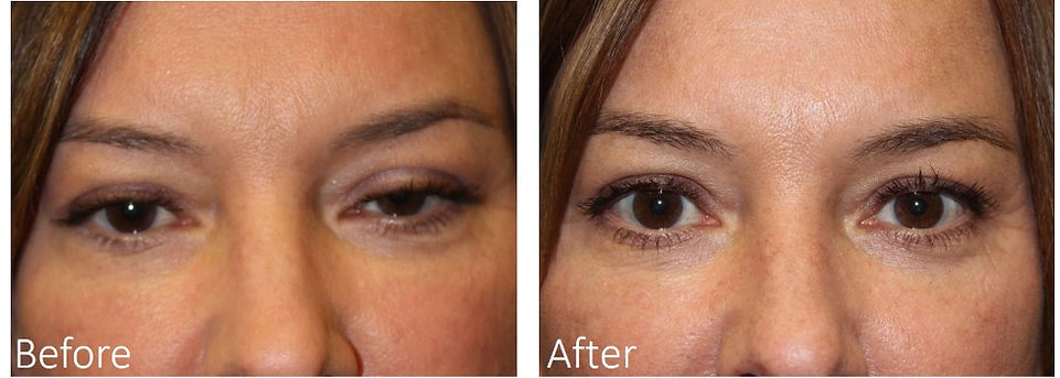 Best eyelid surgeon Dallas