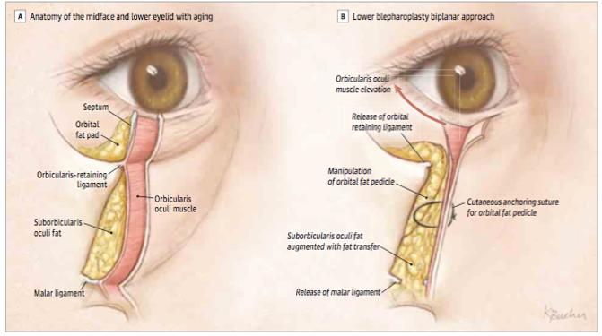 Get rid of lower eyelid bags