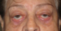 Lower Eyelid