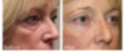 Best eye bag surgeon dallas