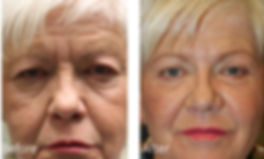 Best Oculoplastic Surgeon Plano
