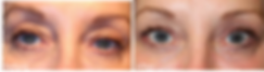 Best Blepharoplasty Surgeon Dalas