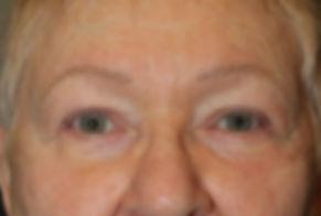 Eye lid lift