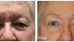 How to improve wrinkles around the eyes