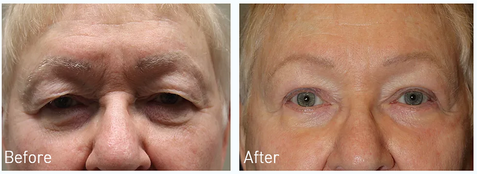 Dallas Blepharoplasty