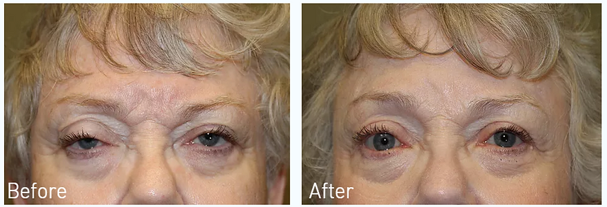 Dallas Eyelid Lift