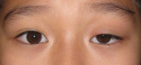 Dallas oculoplastic surgeon ptosis