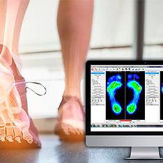 Baropodometria; análise da pisada; dor no pé