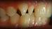 Կծվածքի ուղղում, IPS e.max  ատամնաշապիկ