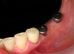 Dentaurum իմպլանտացիոն համակարգ