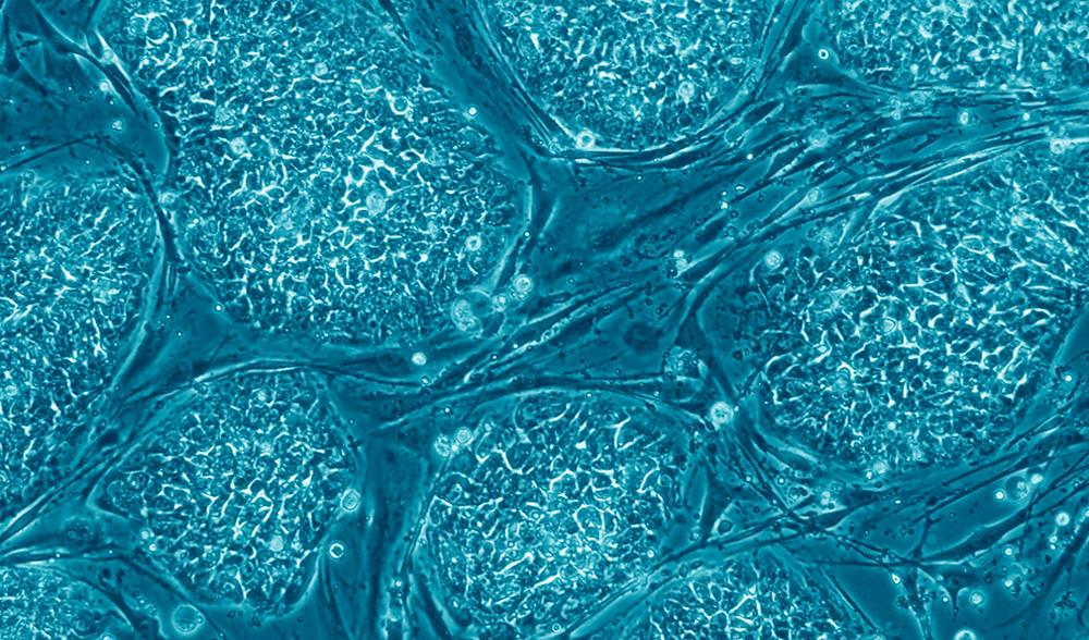 stemcells