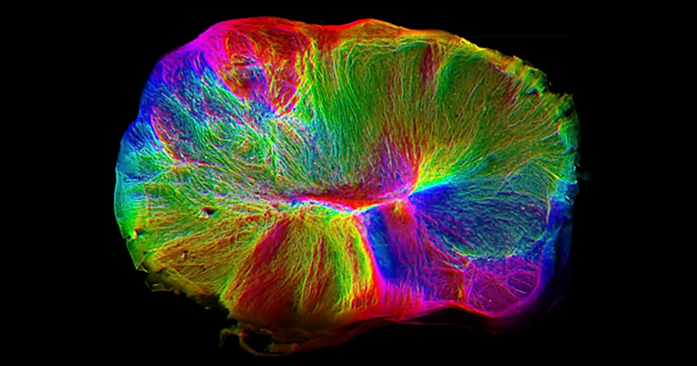 lab-grown-brain-tendrils-spinal-cords-1200x630