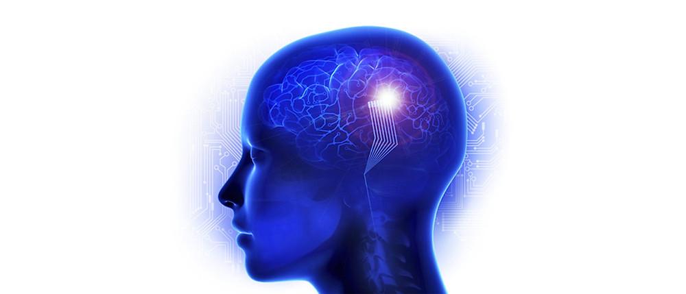 Brain-Prosthetic