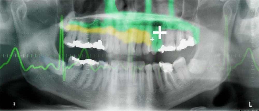 Regenerative-Dental