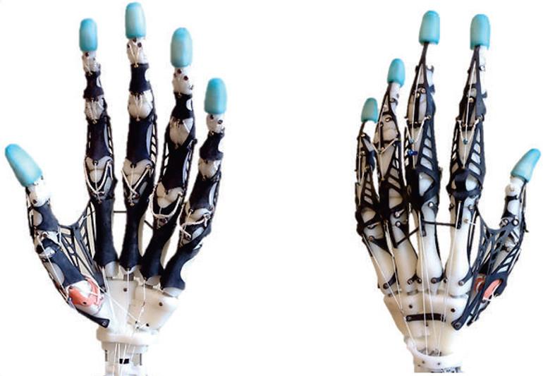 https://i1.wp.com/www.medgadget.com/wp-content/uploads/2016/02/UW-prosthetic-hand.jpg