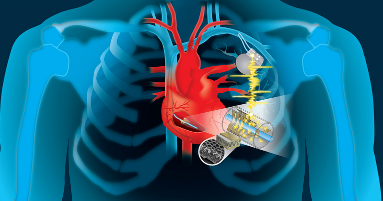 implant-cyborg-devices-heartbeat-768x403