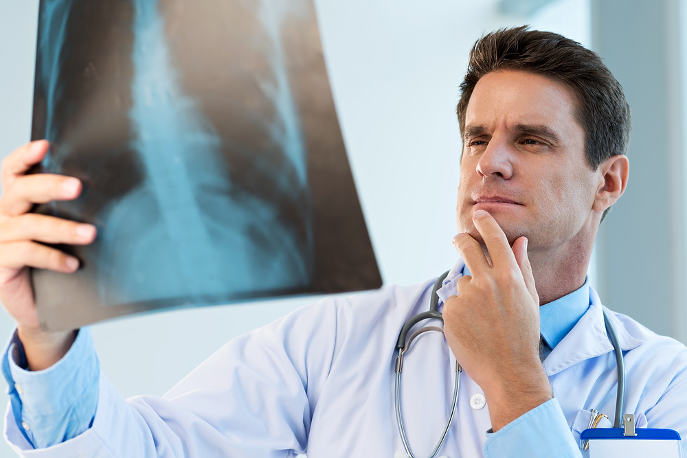 Male doctor looking at x-ray of lungs