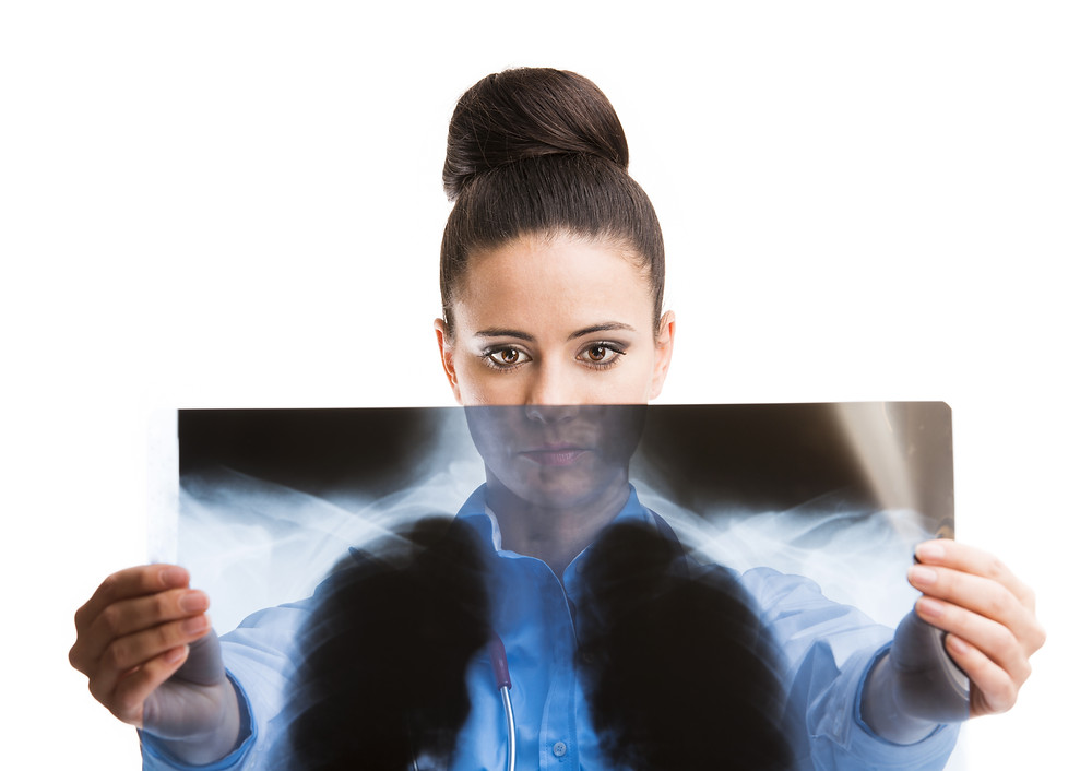 Woman doctor looking at x-ray of lungs