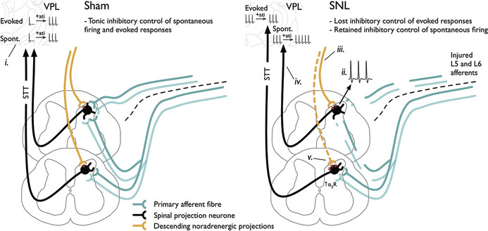Selective deficiencies in descending inhibitory modulation in neuropathic rats: implications for enhancing noradrenergic tone
