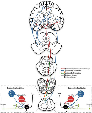 Sensory abnormalities and pain in Parkinson disease and its modulation by treatment of motor symptoms