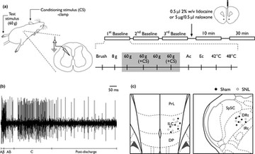 A study of cortical and brainstem mechanisms of diffuse noxious inhibitory controls in anaesthetised normal and neuropathic rats