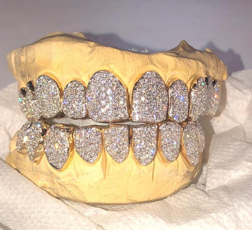 18K VVS Diamond Grillz 16 Teeth