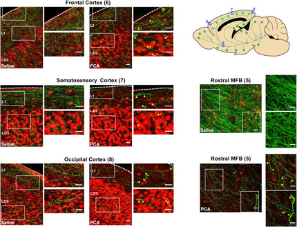 Regrowth of Serotonin Axons in the Adult Mouse Brain Following Injury