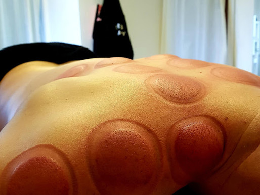 💥 CUPPING THERAPY AFTERMATH! 💥