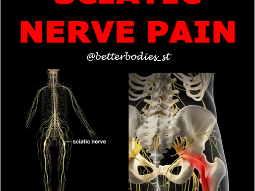 💥 SCIATIC NERVE PAIN 💥
