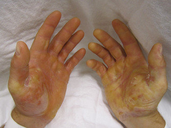 Skin conditions as a predictor of heart disease