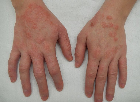 Hand dermatitis management in healthcare workers during Covid‐19