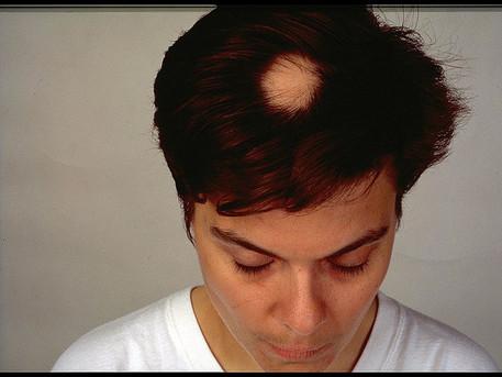 Oral methotrexate monotherapy for severe alopecia areata