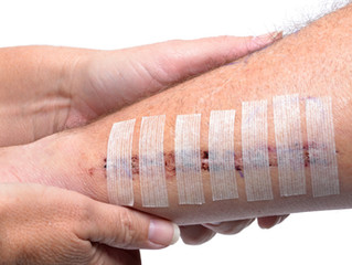 Scar Prevention: Do's and Don'ts