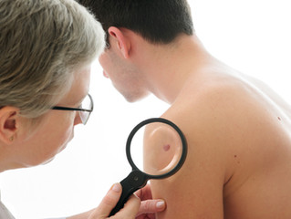The Importance of Having Your Routine Skin Exam