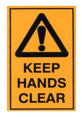 Keep Hands Clear Sticker [20526-AM]