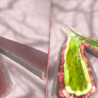 Cystic Fibrosis animation with Vivomotion