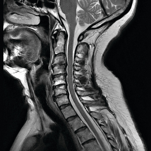 GEHC_GetCreative_MRI_DMR750wGEM_clinical11LR