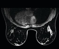 GEHC_GetCreative_MRI_DMR750wGEM_clinical3LR