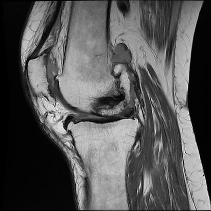 knee.bmp